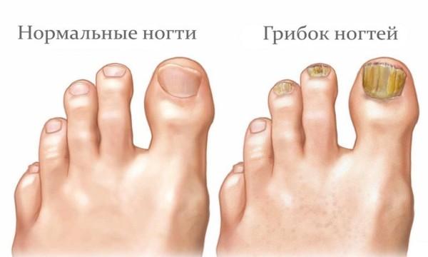 Лечение грибка ногтей и ступней ног народные методы