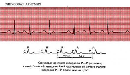 Как определить болезнь на ЭКГ