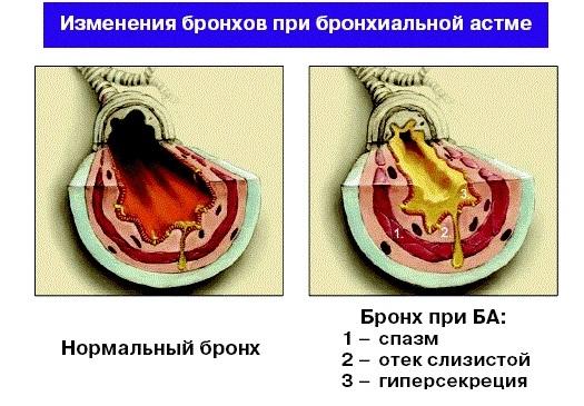 Внешний вид бронхиальных трубок