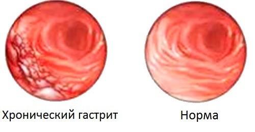 Слизистая желудка при гастрите и в норме