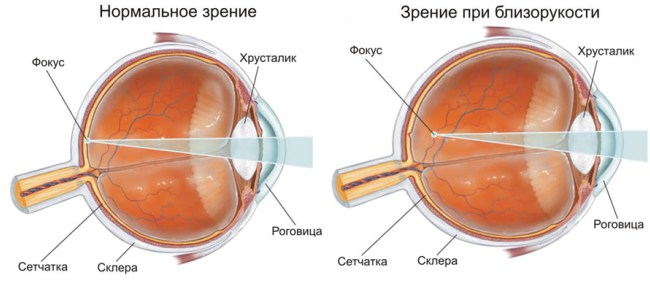 Зрение при близорукости