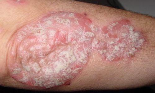 Пример болезни на ноге