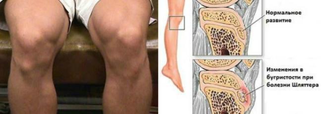 Нормальное развитие сустава и ненормальное