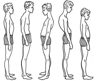 Проблемы со спиной у призывников