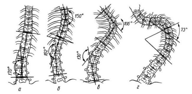 Определение углов изгиба позвоночника