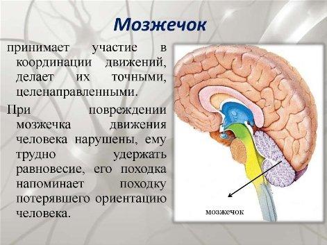 Проблемы с мозжечком
