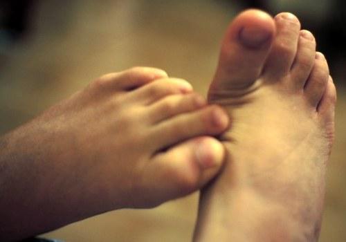 Плоскостопие на ногах