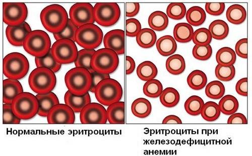 Сравнение состава крови