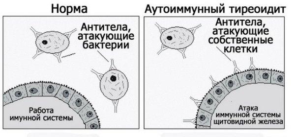Как проявляется болезнь