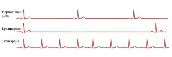 Различия в ЭКГ при разных болезнях