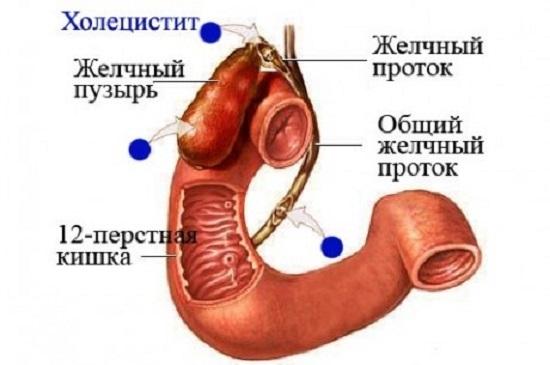 Пораженные внутренние органы