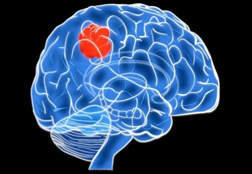 Образование в мозге