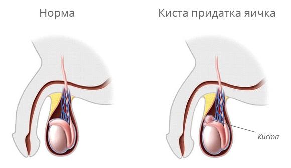Проблемы с яичком