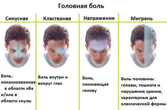 Как болит голова