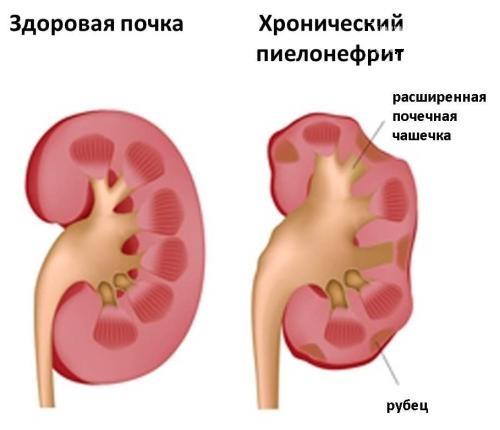 Сравнение больной и здоровой почки